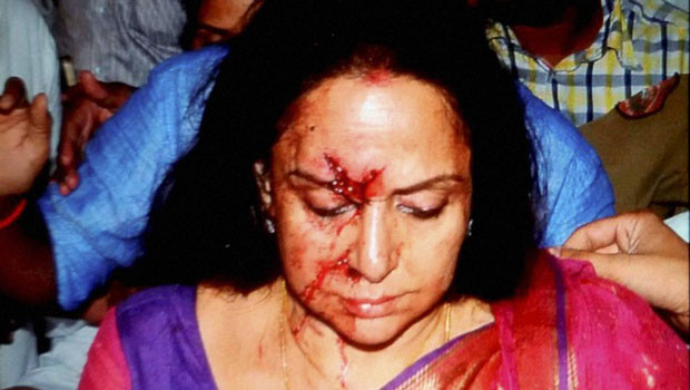 Hema Malini car accident